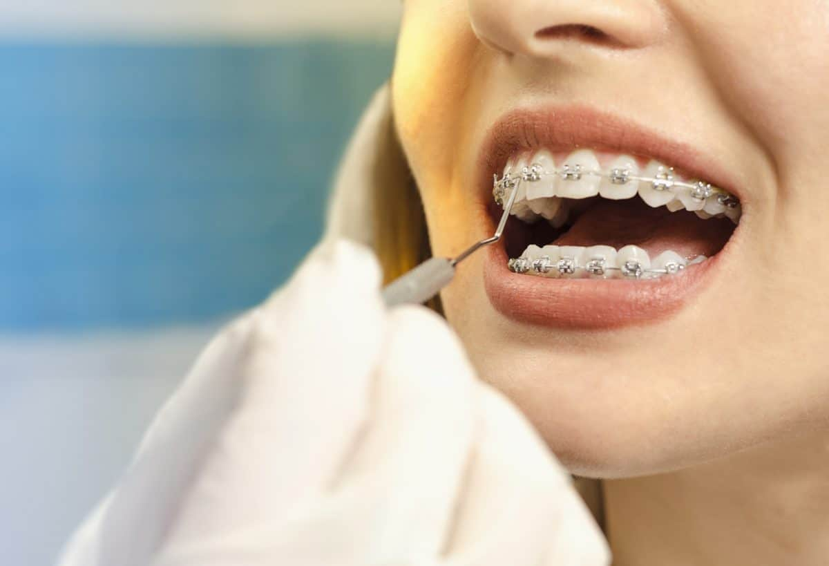 close up dental braces checkup